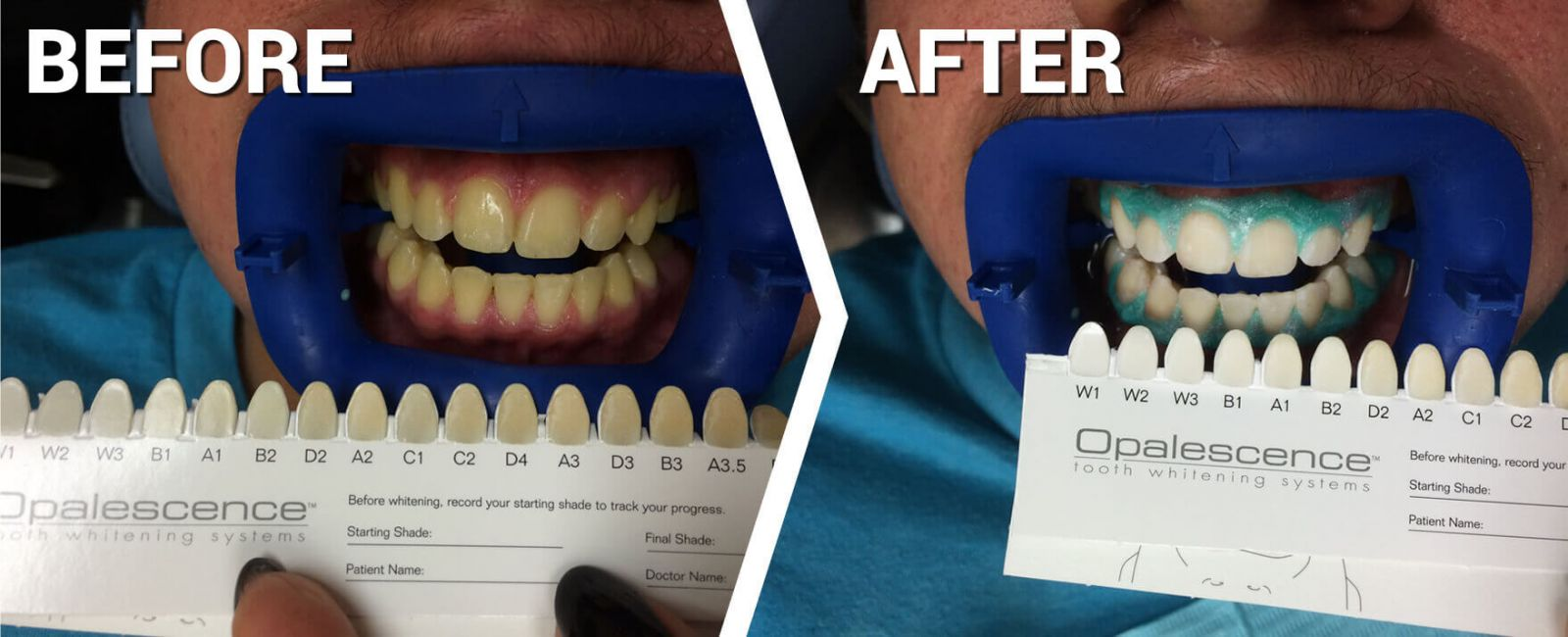 Teeth whitening promotion - before and after